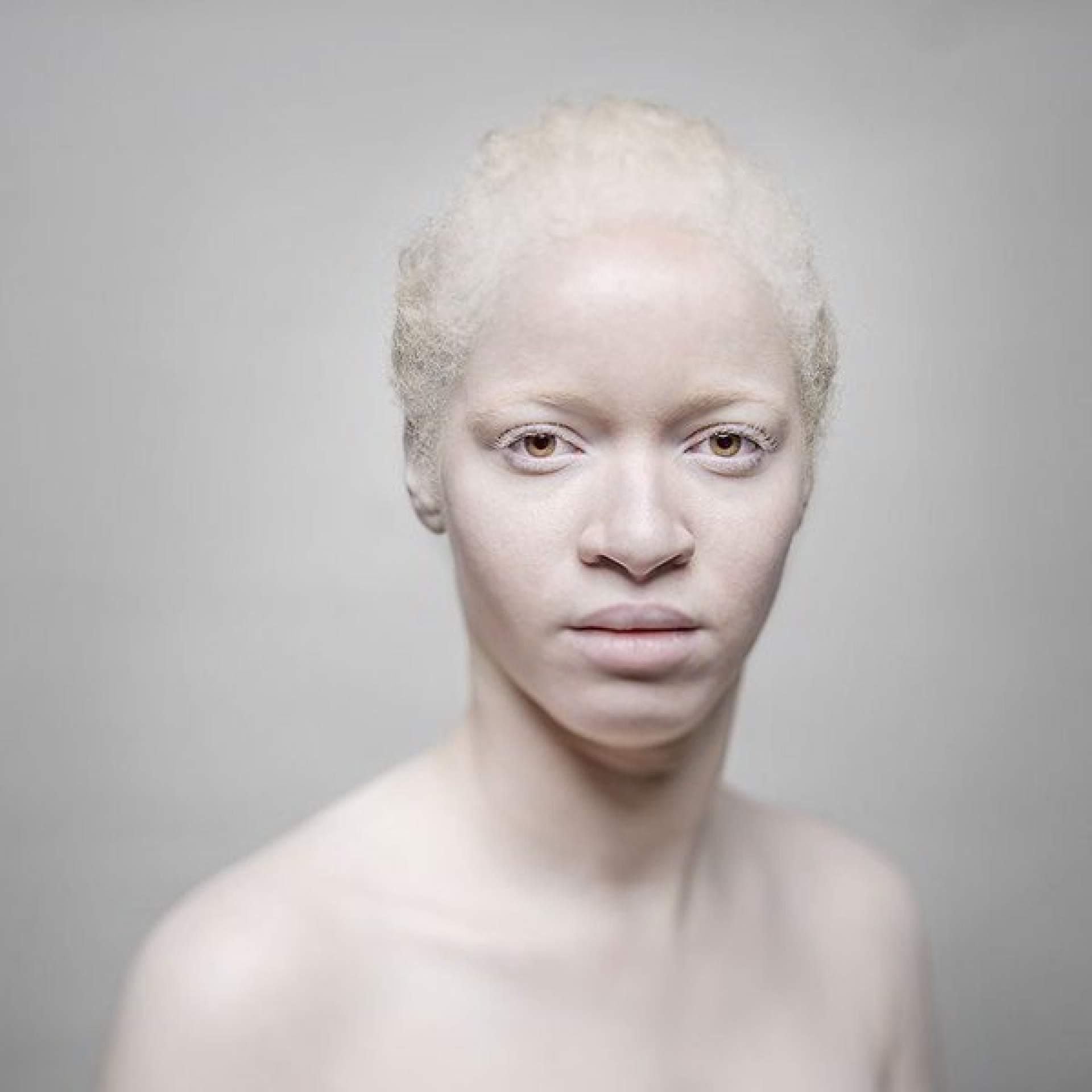 alice leveque albinos